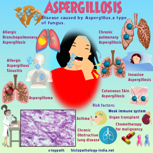 Pathology of Aspergillosis - Dr Sampurna Roy MD
