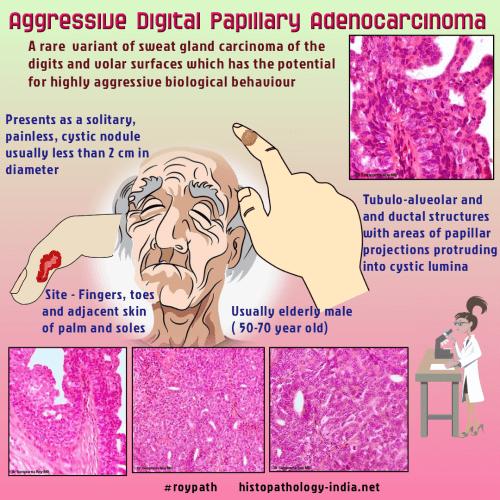 papillary skin lesion)