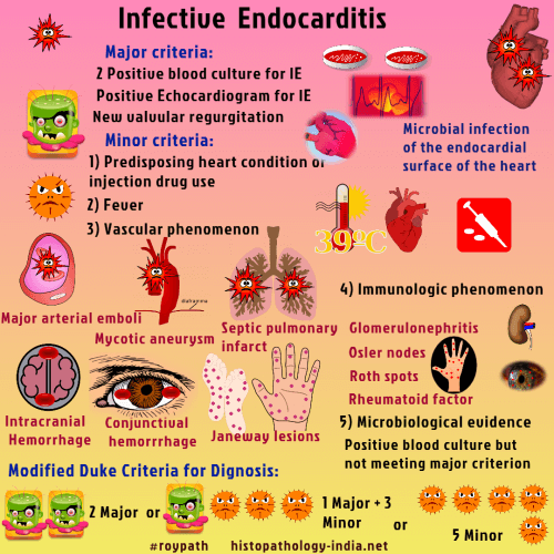 Pathology of Infective Endocarditis - Dr Sampurna Roy MD