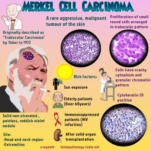 neuroendocrine cancer merkel cell recenzii pentru tratamentul gâtului papilomas