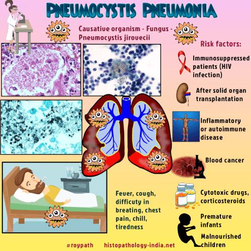 Pathology of Pneumocystis Pneumonia - Dr Sampurna Roy MD